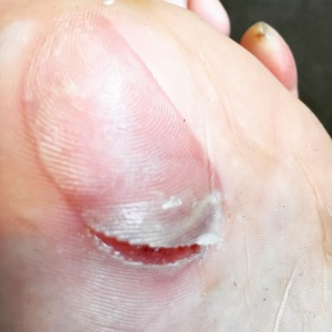 Hurty blister